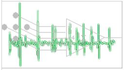 Système de mesure d'EMG à haute résolution spatiale