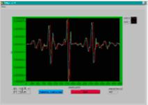 Logiciel pour la simulation de signaux EMG