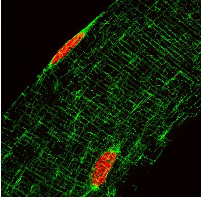 Fibre musculaire marquée pour les microtubules en vert et les noyaux en rouge